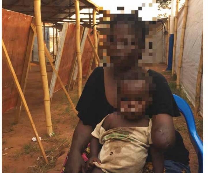 """RDC : des """"massacres organisés"""" par Kabila pour rester au pouvoir, selon une enquête de la FIDH"""