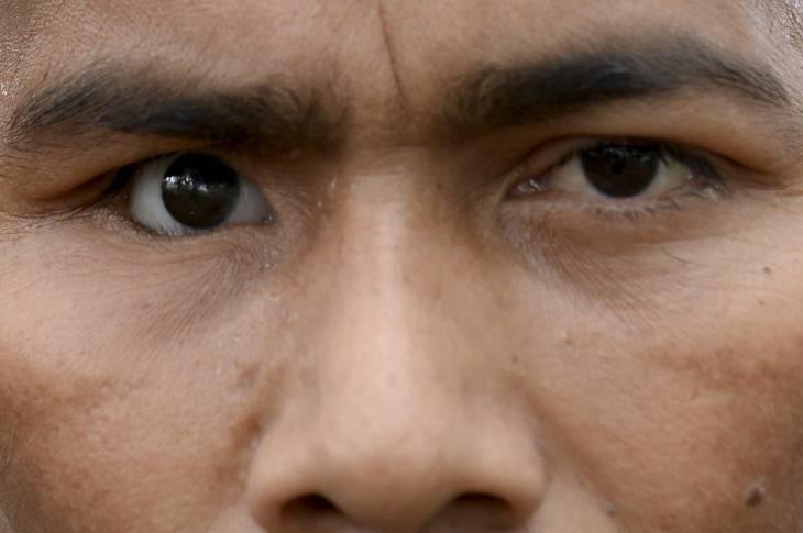 Colombie: les guérilleros des Farc, leurs cicatrices et celles des autres